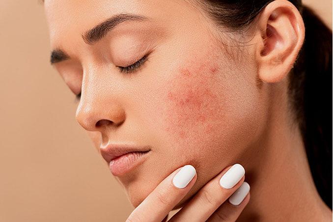El uso reiterado de la mascarilla puede provocar la aparición del maskacné - El Círculo de la Belleza